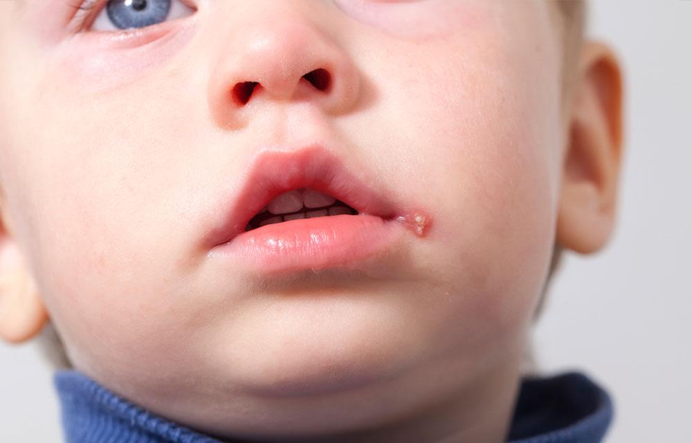 Herpes bei Kindern: Hier Herpes im Mund