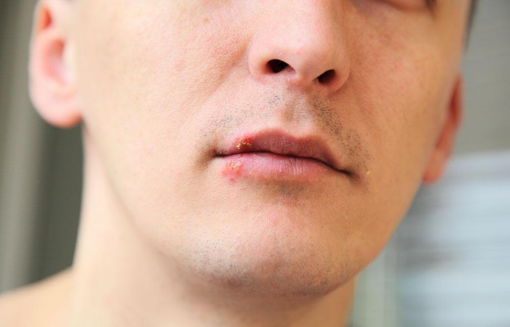 Lippenherpes (Herpes labialis) beim Mann