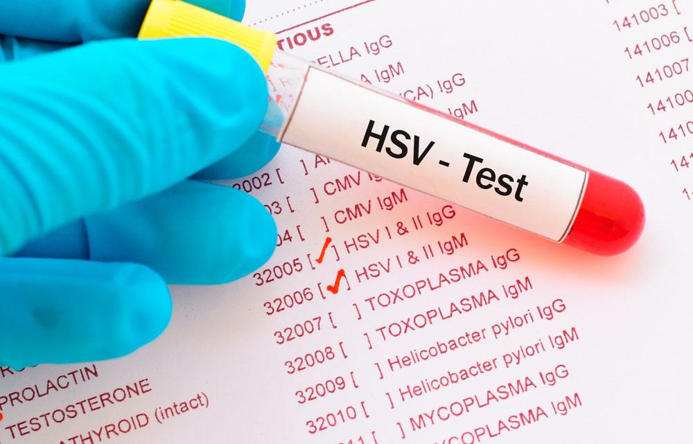 HSV-1 und HSV-2 Test und Testergebnis