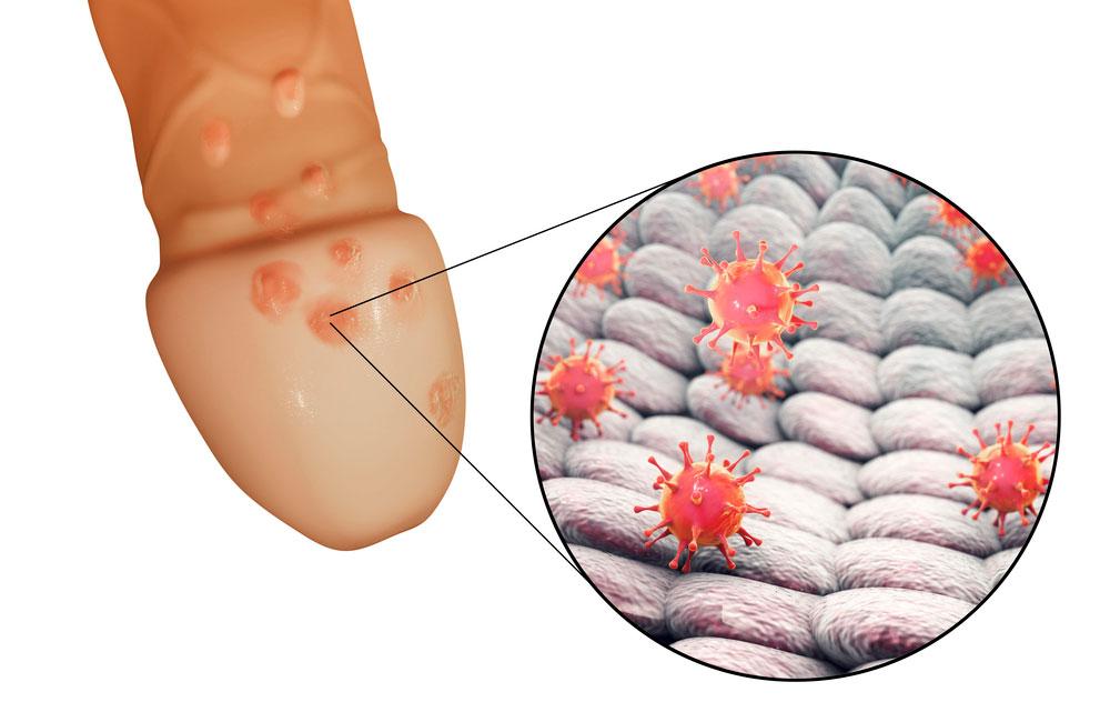 Abbildung: Genitalherpes (Herpes genitalis) genauer Fieberbläschen vom Herpes-Simplex-Virus Typ-2 am Penis