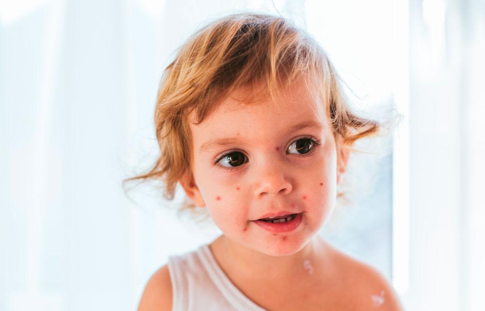 Windpocken im Gesicht beim Kleinkind verursacht durch Herpes