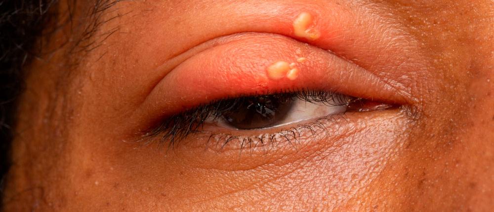 Herpes im auge geht nicht weg